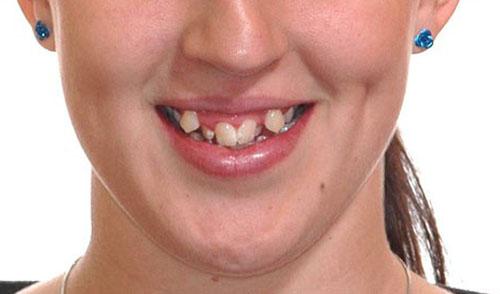 Description: Niềng răng hô móm lệch lạc